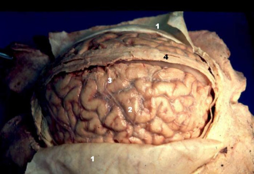 The peeled back layer (1) is the dura mater, the outermost layer of the meninges. The glistening on the brain (2) is the arachnoid layer of the meninges. Underneath this glistening layer would be found the pia mater.
