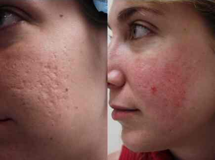 You can avoid such facial scars by visiting a proper esthetic clinic.