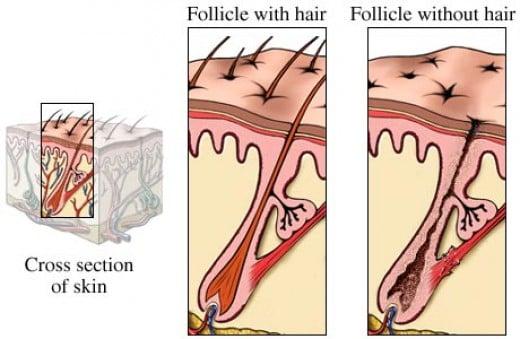 Под действием лазерного луча происходит мгновенное нагревание волосяного фолликула и он разрушается.