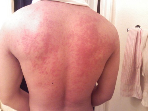 Hives can crop up as a result of irritating products. Even more perplexing, they can occur anywhere on the body even if the offending product wasn't used where the outbreak occurs.