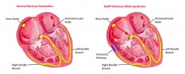 Normal heart vs WPW heart