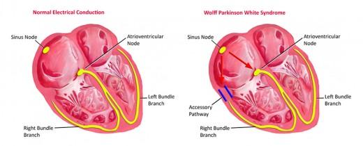 Normal heart vs WPW heart