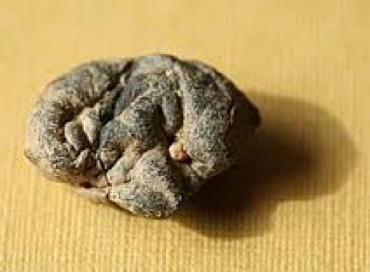 9000 year old chewing gum