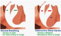 Problems with the muscles in the throat can cause sleep apnea