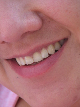 Dazzling White Teeth