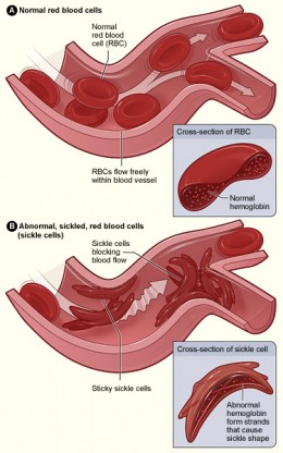 Sickle cell anaemia is a condition that can damage the spleen.