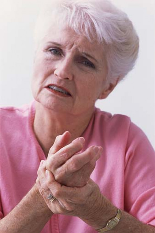 Arthritis of hand/wrist