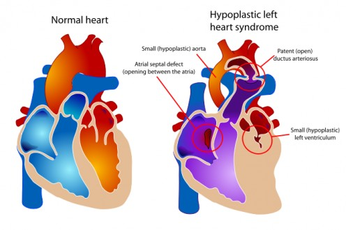 Diagram Comparing Normal Heart to a Heart with Hypoplastic Left Heart Syndrome