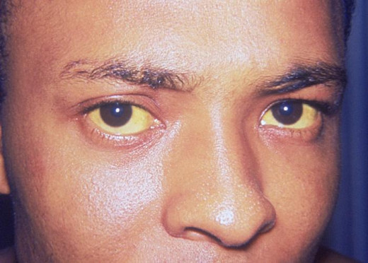Jaundice, caused by an increase in bilirubin levels in the blood, is caused by Hepatitis. This man suffers from Hepatitis A.