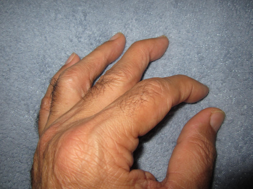 Chronic swollen joints, swan's neck forming in the middle finger, swelling in thumb mid knuckle, and top knuckle in the index finger.