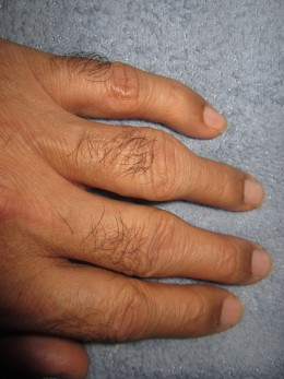 Tell-tale signs of a person suffering from arthritis - swollen joints at mid knuckle.