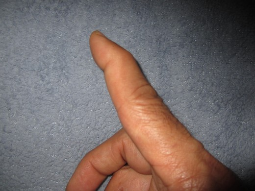 "The classic ""swan-neck"" deformation of the index finger pictured."