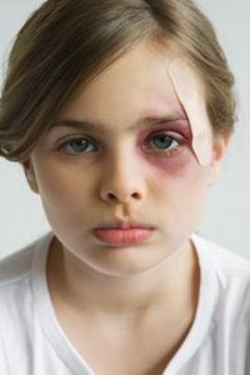 Child abuse - a national tragedy