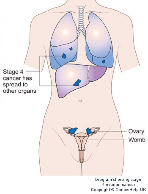 survival rates for stage 4 ovarian cancer will depend on whether other organs have been affected.