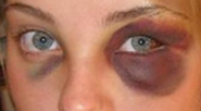 Black eyes.