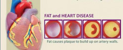 Fat And Cholesterol Levels
