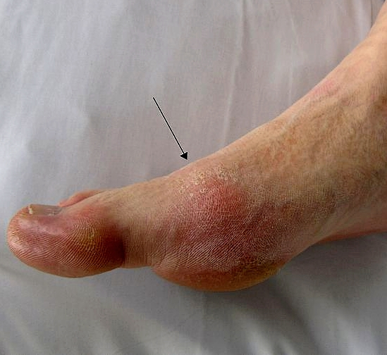 how to get rid of gout fast can you get gout in both big toes symptoms of high levels of uric acid