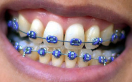 The time leading up to getting braces can be one of apprehension and anxiety--here's how to prepare for getting braces.
