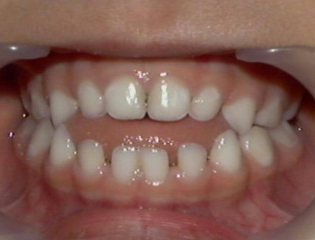 An open bite, which can be one way to tell that you need braces, can cause health problems such as TMJ or sleep apnea.