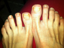 Tea Tree Oil on Toenail Fungus: Photos That Let You Decide If It Works