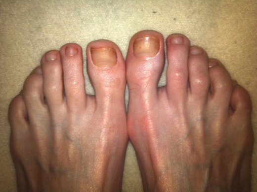 I left the tiny trace of polish on the right big toe in order to track toenail growth.