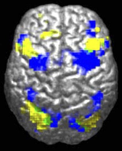 An image from an fMRI scan which allows us to see changes in brain function (4 images per second!). The yellow parts show which parts of the brain an autistic person used whilst the blue shows the parts a regular person used.