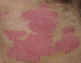 A typical psoriasis plaque