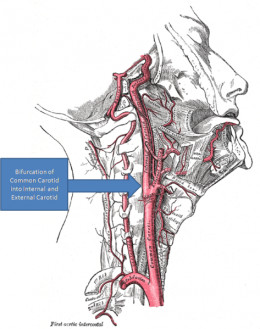 The carotid artery in the neck - one of the major vessels that can block leading to a stroke.