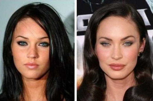 Megan Fox before and after plastic surgery.