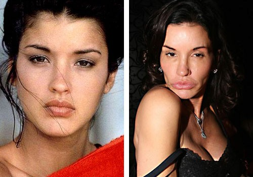 A side-by-side look at how she appears before and after plastic surgery.