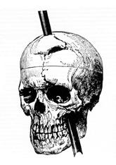 The case of Phineas Gage showcases one of the most unique brain injuries in history.