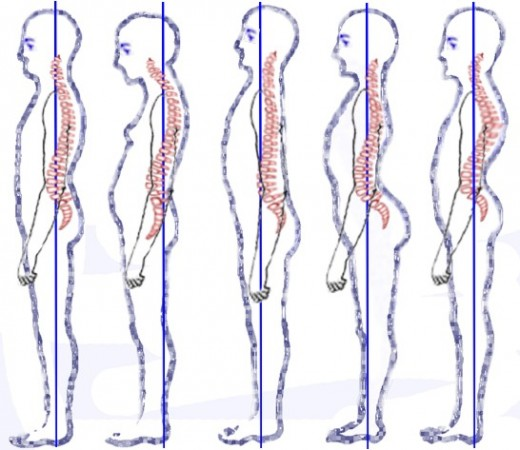 As writers our spine, neck and limbs are at particular risk of injury due to sitting at a desk using a computer for long periods.