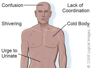 These are just some of the symptoms that people may experiance during Hypothermia.