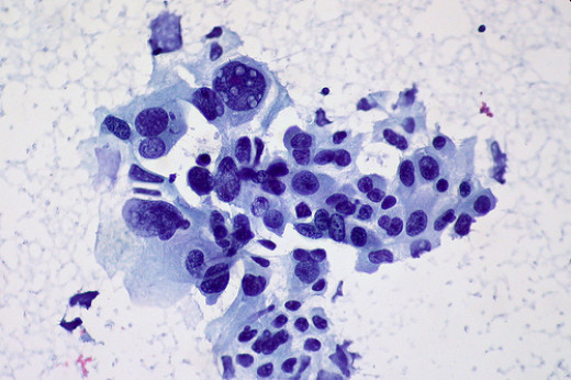Cancer is the reproduction of abnormal cells. This is a carcinoma, or a cancer that begins in the tissues that line organs (or in the skin). In this case, this carcinoma is of the lungs.