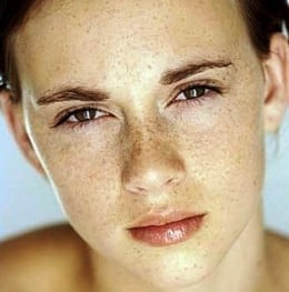 How to get rid of spots on face at home naturally