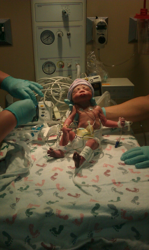 Noah, shortly after being born.