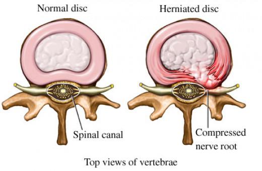 http://denverchiropractor.com/blog/herniated-disc-same-as-bulging-disc/