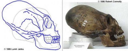 The skull of a giant?