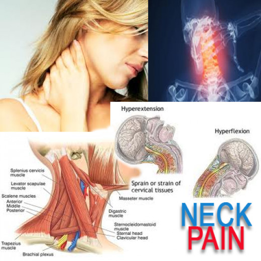 Do you suffer Neck Pain?