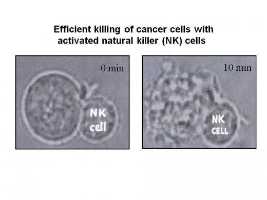 "Killing cancer cells with ""Killer Cells"""