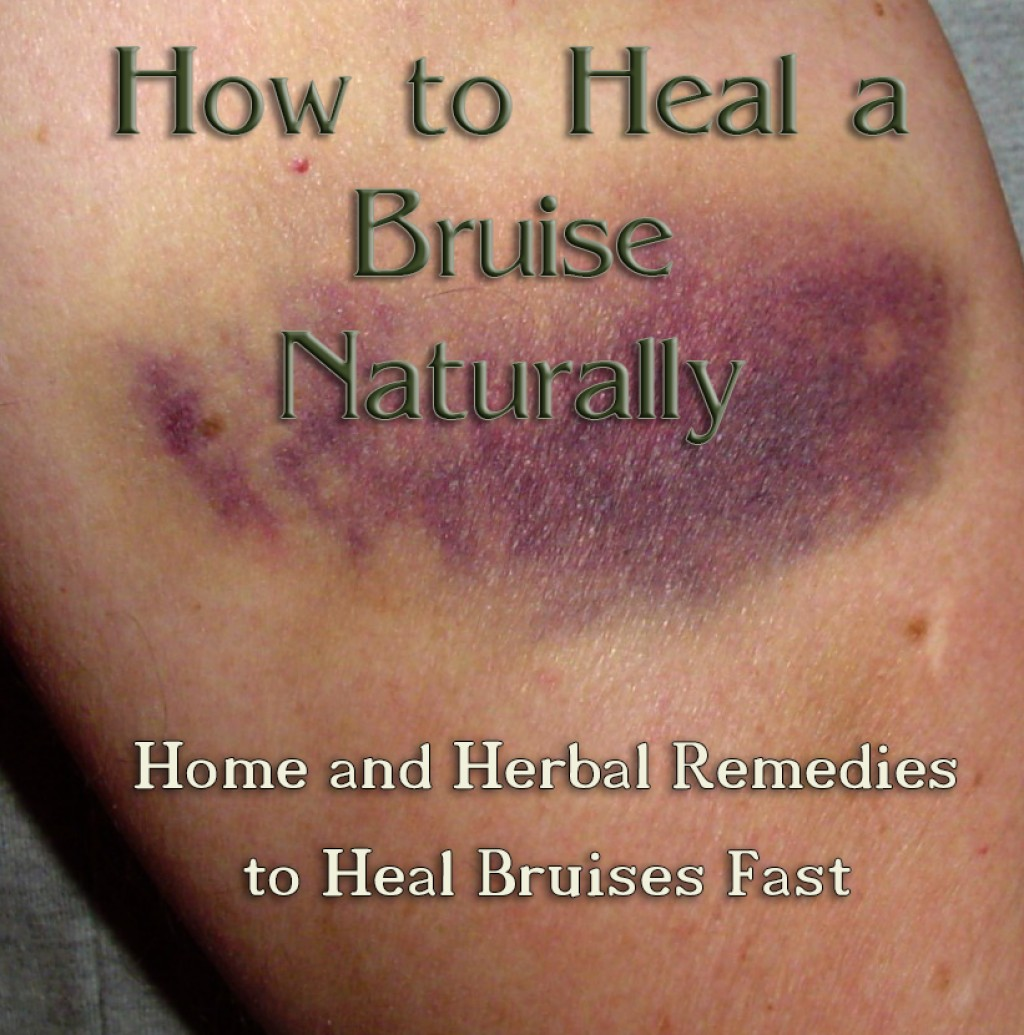 Remove Bruise Naturally