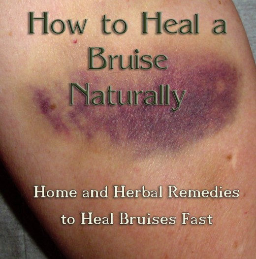 how to tell how old a bruise is