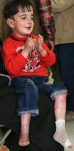 This is a less severe case of DEB, but notice how his toes are fused together. Mobility is rare amongst sufferers.