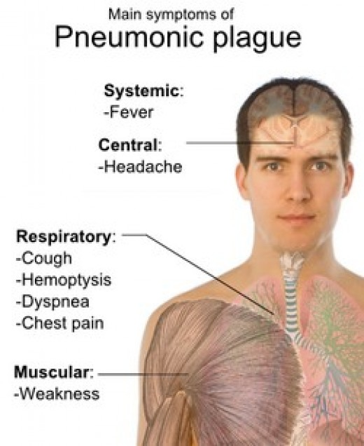 Symptoms of pneumonic plague.