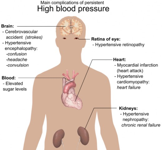 Diagram showing the main health complications of long term high blood pressure/hypertension.
