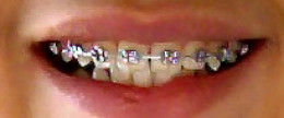 Braces can help you achieve the best smile possible.