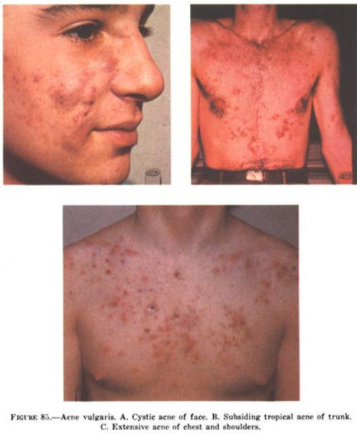 Severe acne on chest.