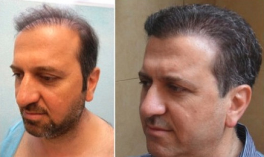 Hair transplantation takes at least 6 months to show this type of improvement.