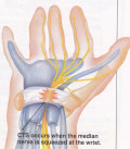 Carpal Tunnel Syndrome and Surgery - My Experiences