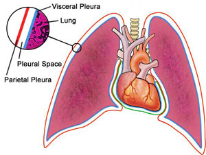Pleura is membrane like covering of lungs. There are two types; Parietal (outer) and Visceral (inner and directly covering the lungs). The space in between the two membranes is called pleural space. Pleural space generally has volume in milliliters.